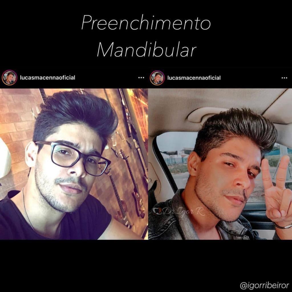 Igor Ribeiro - Preenchimento mandibular
